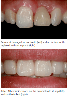 dental-implant-birmingham-dentist