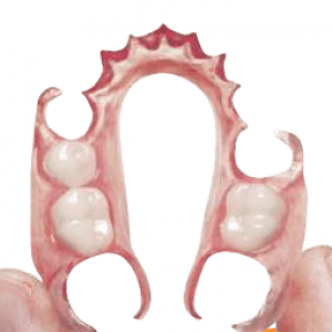 citydental-flexible-denture-birmingham-dentist