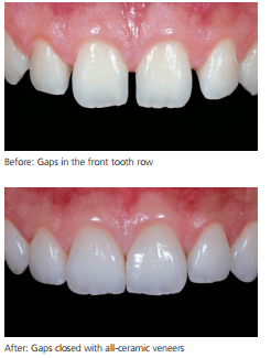 veneer-example-dentist-in-birmingham